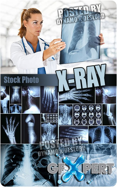 X-ray - UHQ Stock Photo
